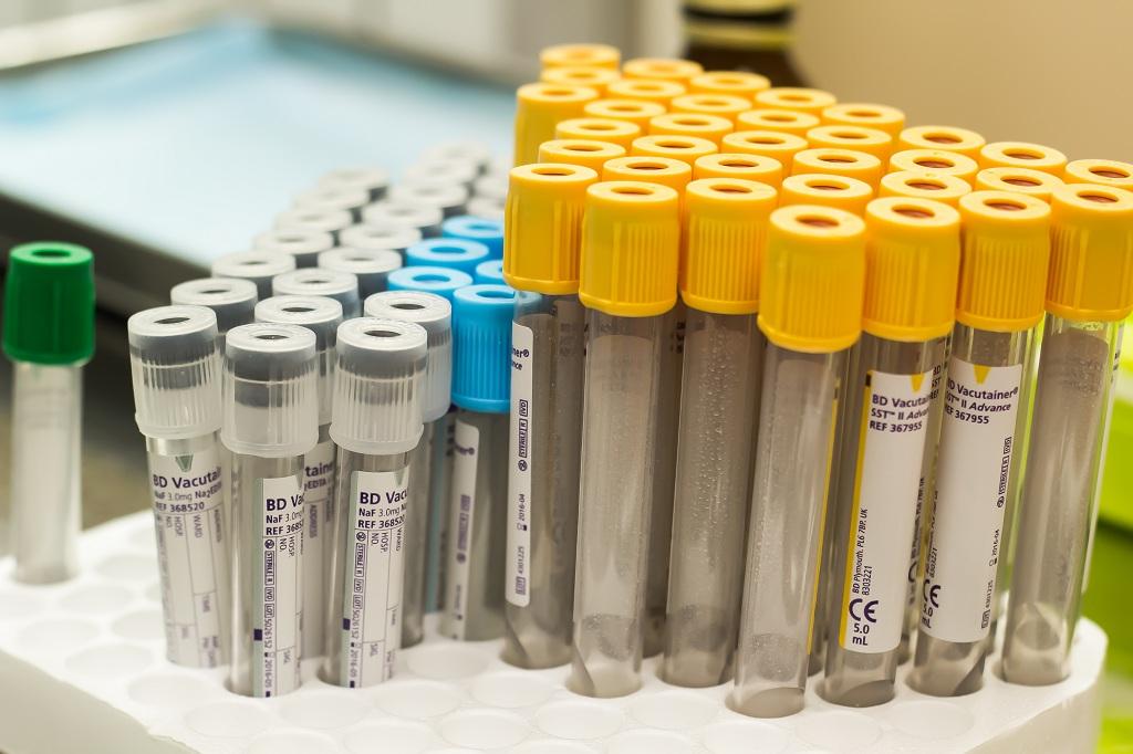 Четвёртая группа крови, резус положительный: характеристика и особенности