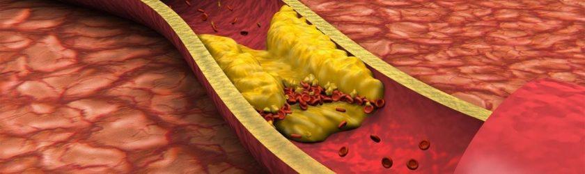 симптомы высокого холестерина в крови у мужчин