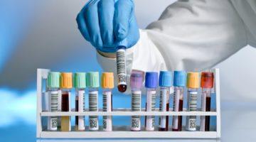 Относительная ширина распределения тромбоцитов по объёму повышена: индекс PDW в анализе крови и его норма
