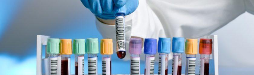 анализ крови на pdw распределение тромбоцитов по объему