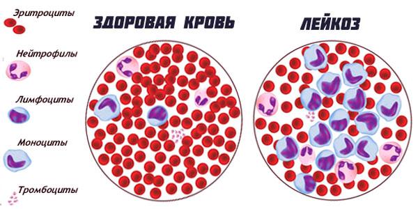 Изображение здоровой крови и лейкоза