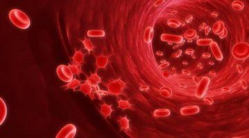 Причины и симптомы рака крови у взрослых и детей