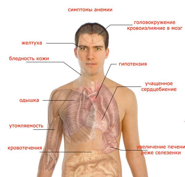 Симптомы апластической анемии