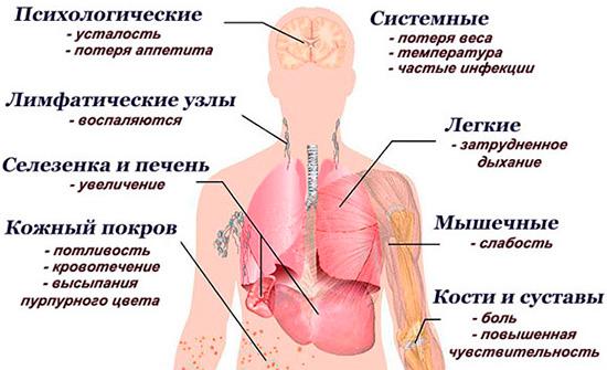 Симптомы лейкоза у взрослых