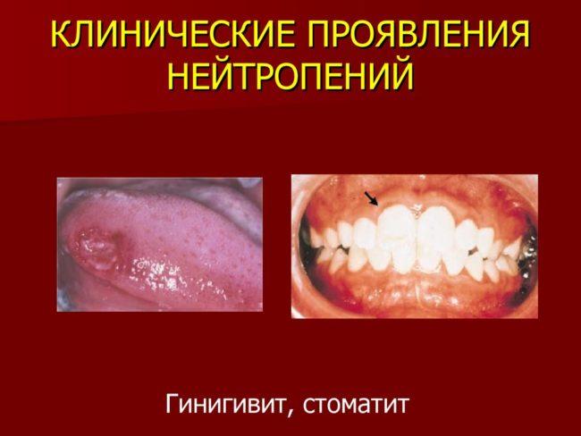 Гингивит и стоматит