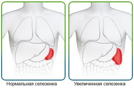 Схема расположения селезёнки при нормальных и увеличенных размерах органа