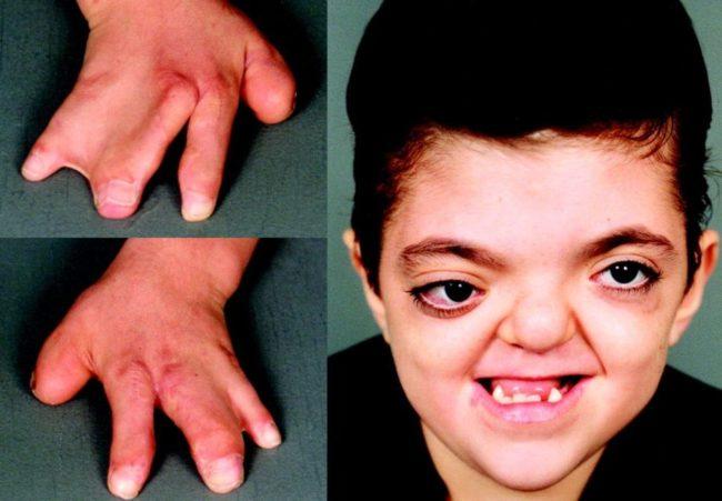 Нарушение формирования скелета у ребёнка с анемией Фанкони