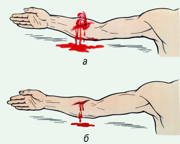 Артериальное и венозное кровотечение