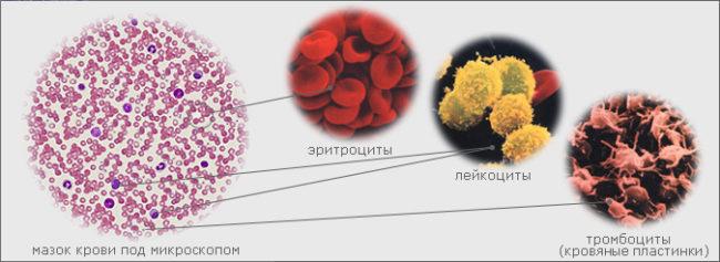 Клетки крови человека под микроскопом