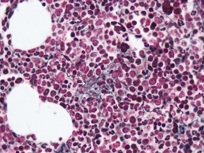 Опухоль костного мозга под микроскопом