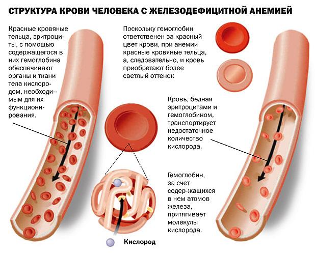 Схема процессов при железодефицитной анемии