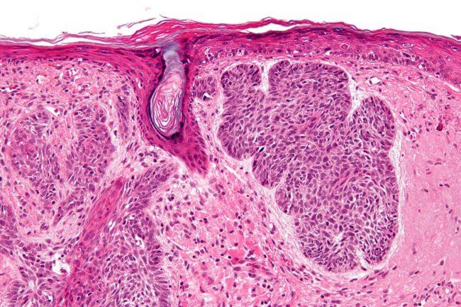 Базалиома под микроскопом