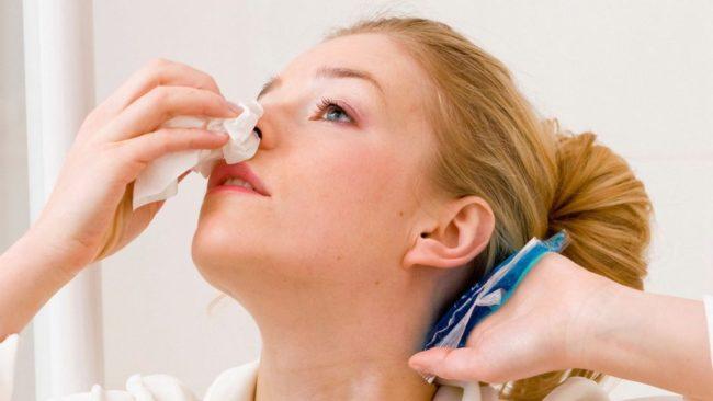 Девушка с носовым кровотечением