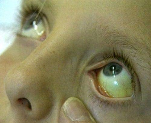 Иктеричность кожи и склер у ребёнка