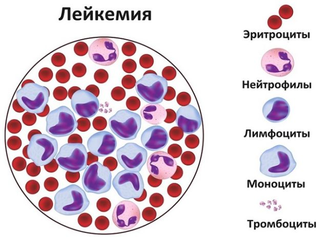 Лейкемия (схема)