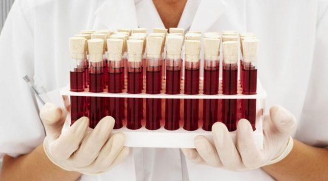 Медсестра держит пробирки с кровью