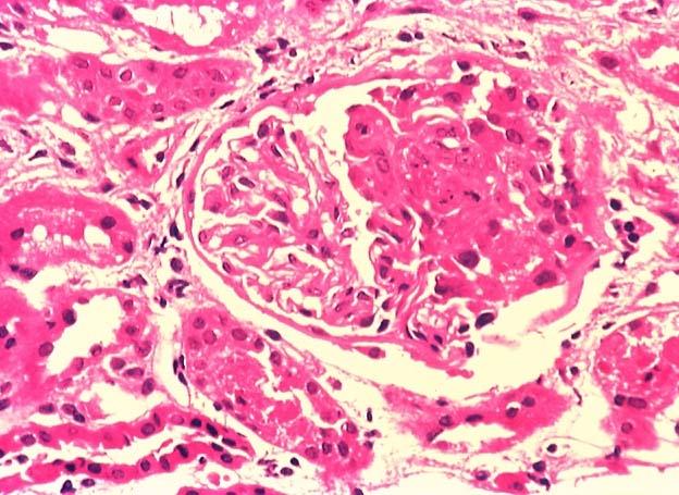 Микроскопическая картина почки при подостром гломерулонефрите