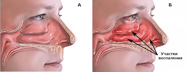 Нормальная и воспалённая слизистая носа