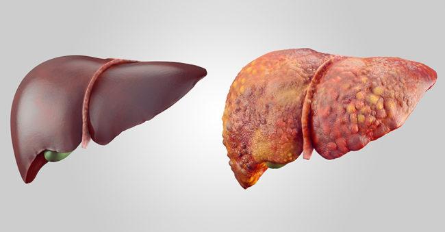 Нормальная печень и поражённая циррозом