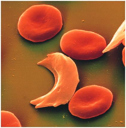 Нормальные эритроциты и серповидные