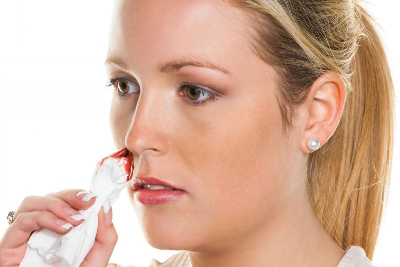 Почему идёт кровь из носа: сложные причины простого симптома