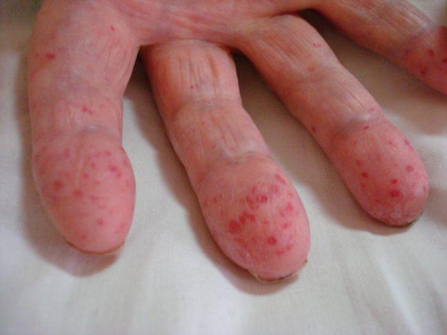 Пальцы пациента с синдромом Рондю-Ослера