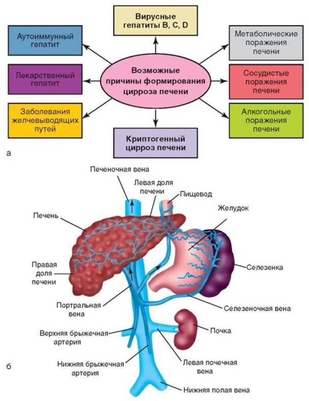 Причины цирроза печени (схема)