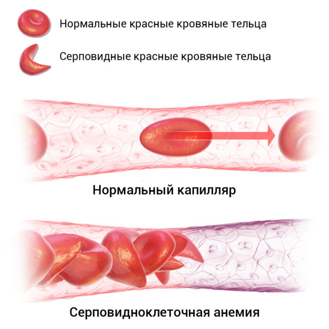 Сосуд с нормальными эритроцитами и серповидными