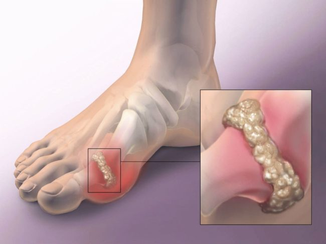 Воспаление межфалангового сустава большого пальца стопы при подагре