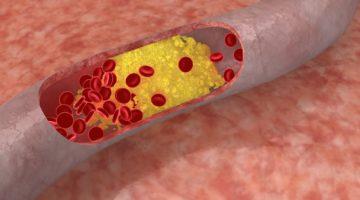 Нормы холестерина в крови у мужчин по возрастам