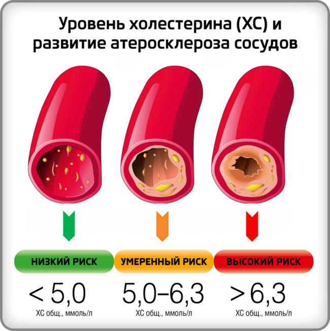 Схема поражения сосудо холестериновыми бляшками