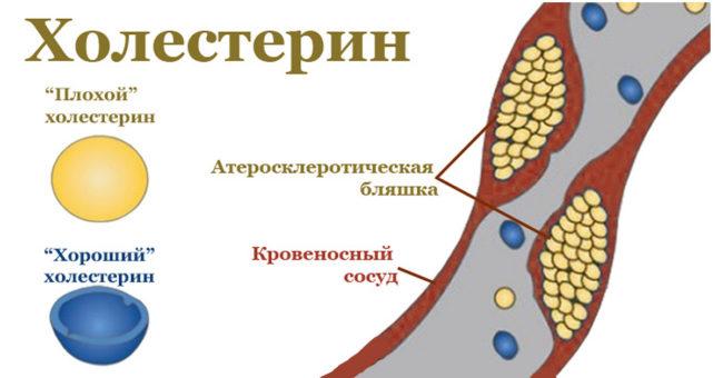 Схема расположения липопротеидов в кровеносном сосуде