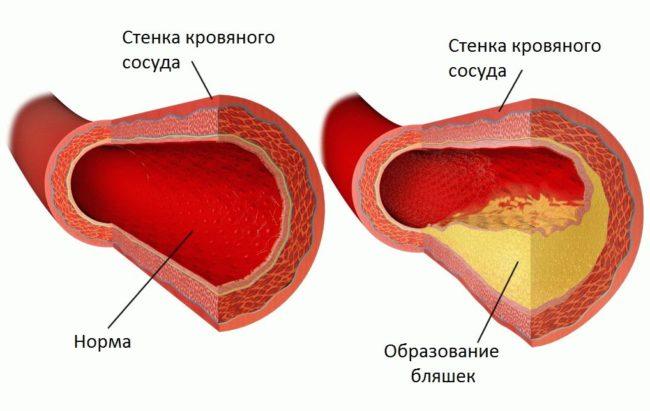 Здоровый сосуд и поражённый атеросклеротической бляшкой