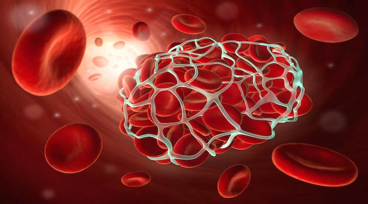 Анализ крови на мутации генов гемостаза