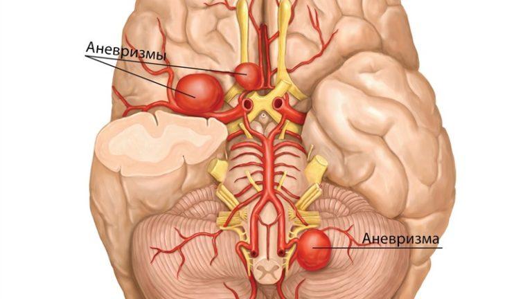 Инвалидность при аневризме сосудов головного мозга