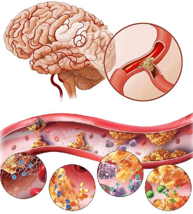 Атеросклероз сосудов головного мозга, схема