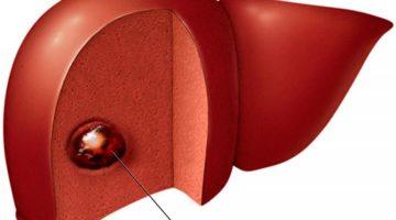 Гемангиома печени – причины, симптомы, лечение