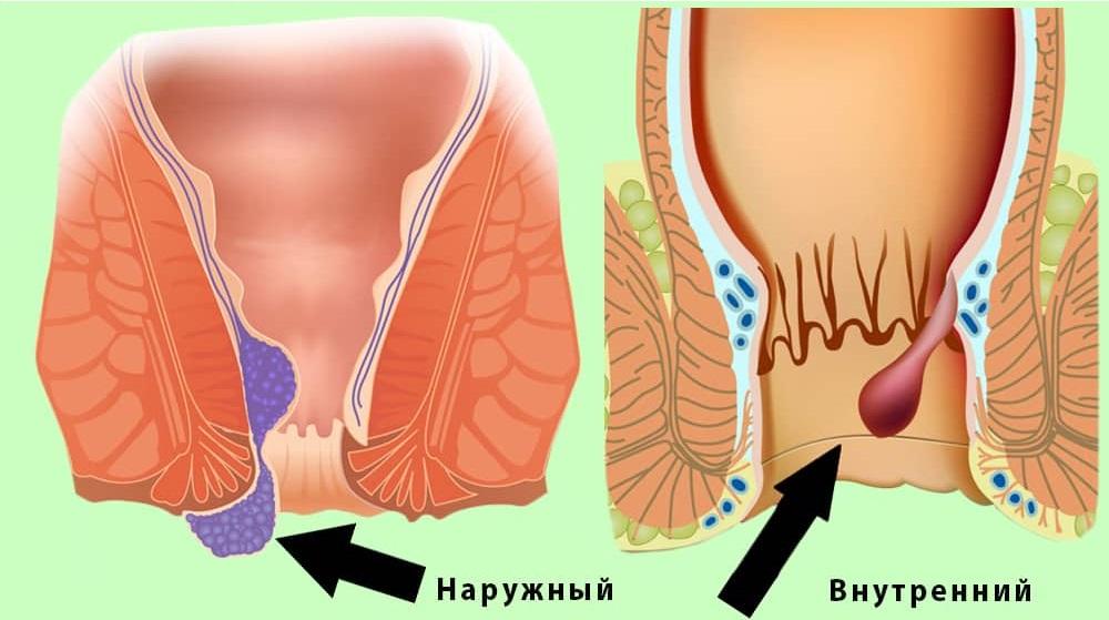 геморрой кровь лечение