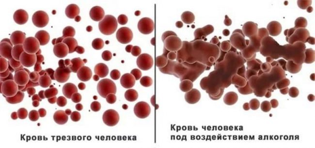 Кровь трезвого человека и человека под воздействием алкоголя