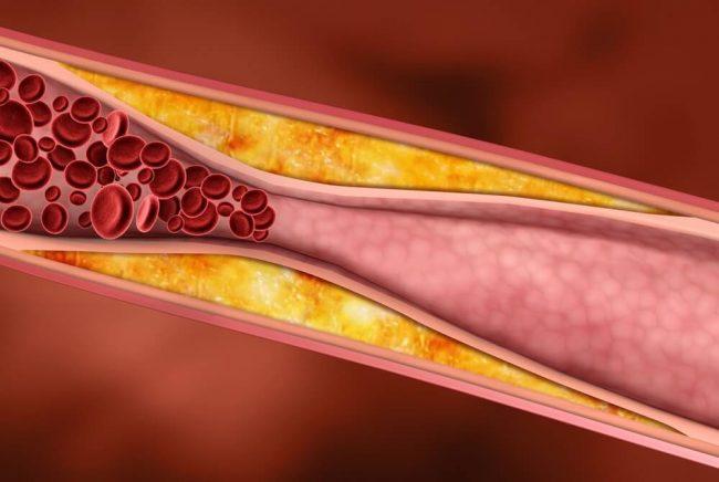 повышение уровня холестирина