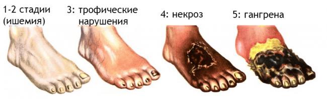 Стадии болезни Бюргера, схема