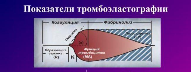 Пример нормальной тромбоэластографии, график