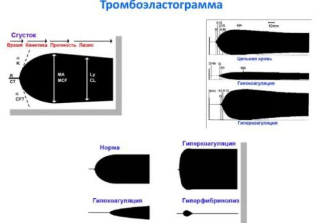 Схема результатов анализов тромбоэластографии