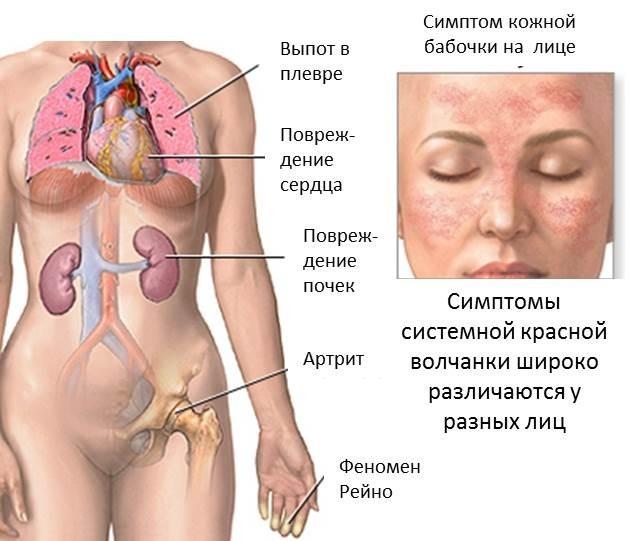 Симптомы красной волчанки у женщин схема