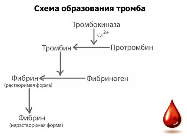 Схема образования кровяного тромба