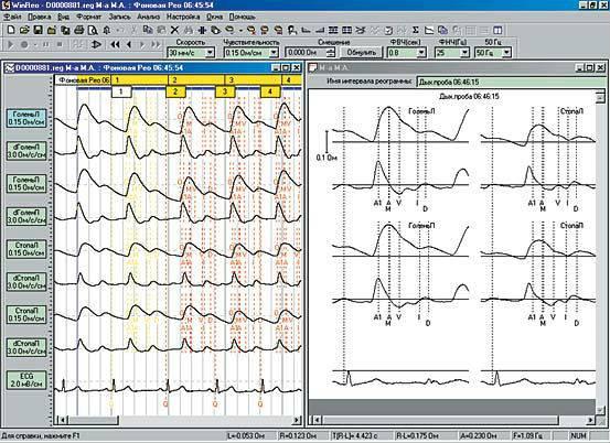Пример РЭГ на компьютере