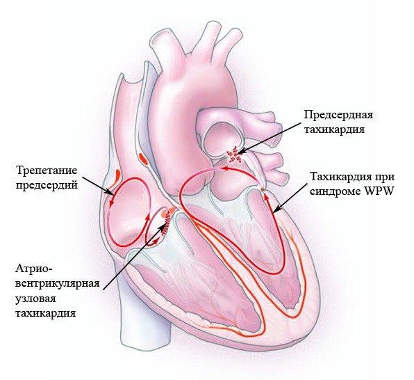 Схематическое изображение сердца с указанием разных форм тахикардии